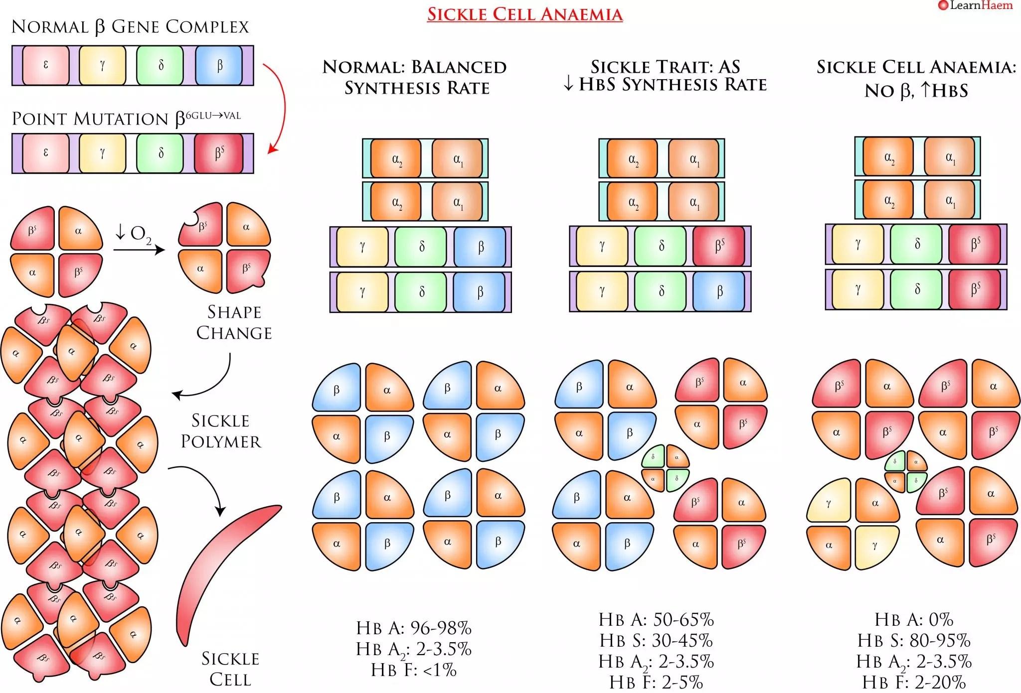 Sickle Cell Anaemia Learnhaem