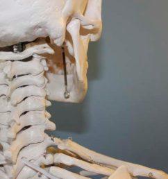 Skeleton Projects [ 720 x 1280 Pixel ]