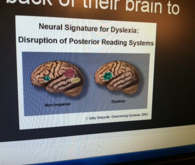 He Even Explains How His Brain Is Different Than Someone Who Does Not Have Dyslexia Yes He Explains The Basic Neurological Processes Seriously