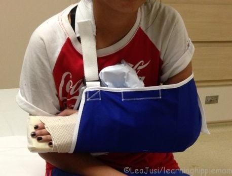 K's injured arm
