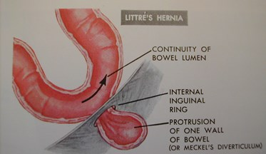 Image result for littre's hernia