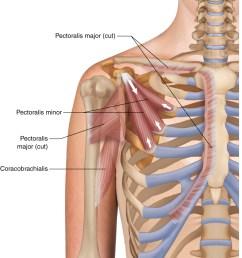 pectoralis minor learn muscles pectoralis minor muscle diagram pectoralis minor diagram [ 902 x 1018 Pixel ]