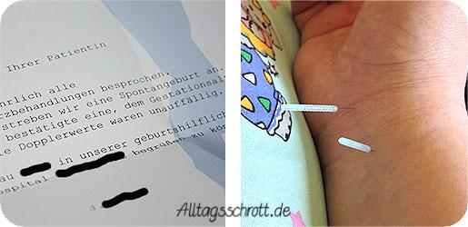 Akkupunktur - Nadeln im Arm - Befund vom Arzt - spontane Geburt angestrebt