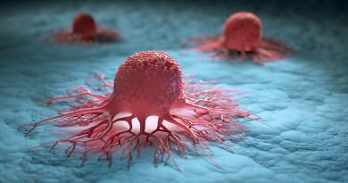 Cancer, les métastases au cerveau - Le blog du hérisson