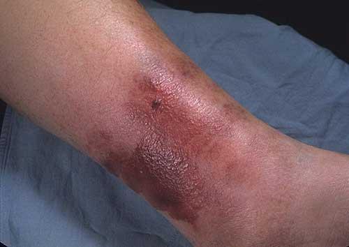Рожистое воспаление кожи. Рожа у ребенка — причины, симптомы и лечение
