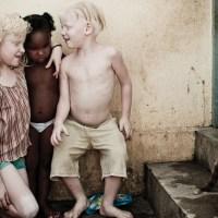 Albinos du Brésil