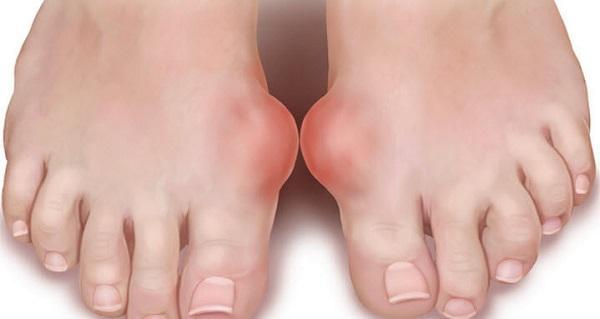 široka stopala od ebanovine