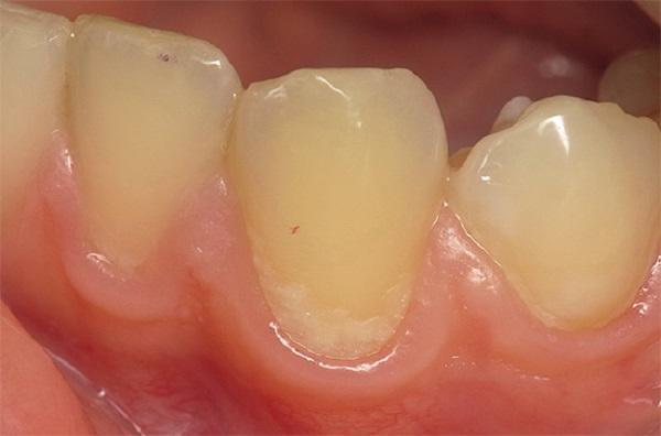 Svorio netekimas dantų ėduonis,