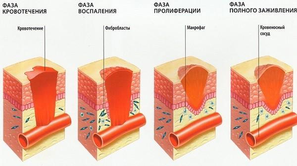 Ушиб коленного сустава при падении — лечение, симптомы, полное описание травмы. Виды и лечение травм колена. Характерные симптомы повреждений Повреждение надколенника коленного сустава