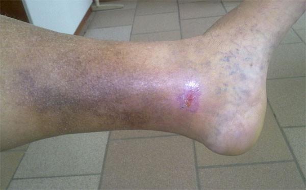 mâncărimea un picior de caviar poate fi varicoză
