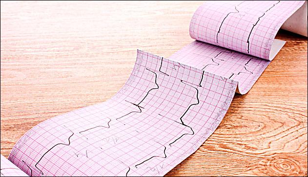 Дистрофия левого желудочка сердца симптомы
