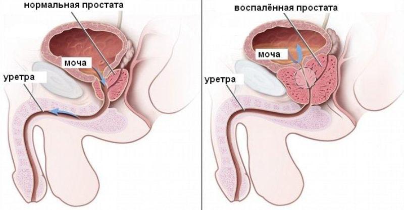 venarusas ir erekcija nuolatinė naktinė erekcija