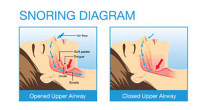 Snoring Diagram. ledhealthandfitness