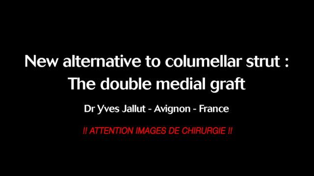 Rhinoplastie bloc et 3D – Docteur Jallut – ATTENTION IMAGES DE CHIRURGIE !!