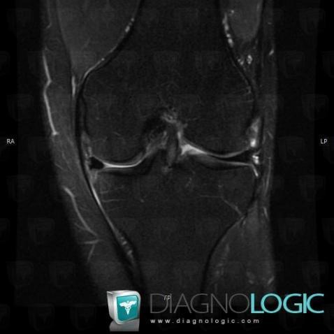 Radiology case : Meniscal flap tear (MRI) - Diagnologic