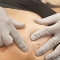 Superficial vs. Deep Needling for Neck and Back Pain