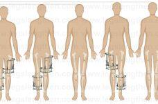 YCLLR-cross-lateral-tibia-femur-lengthening-CLTFL-Ilizarov-method-armenia