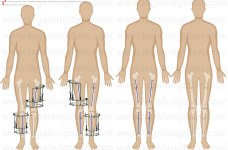 YCLLR-cross-lateral-tibia-femur-lengthening-LON-lengthening-over-nail-CLTFL-armenia