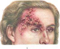Герпес - клиническая картина, лечение...