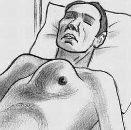 Аневризма аорты (набухание)