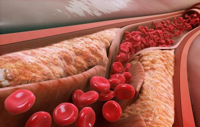 12 эффективных способов лечения атеросклероза