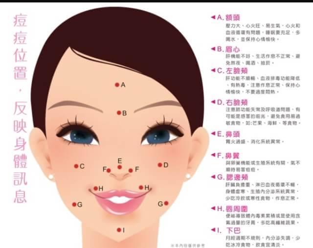 如何改善臉上的痘痘?改善臉頰痘額頭痘鼻子痘! | 涵曦LATOJA官方授權總代臺灣