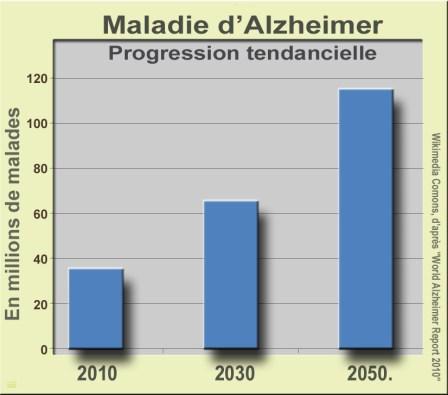 alzheimer1_progression