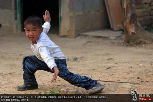 bocah china penderita virus HIV