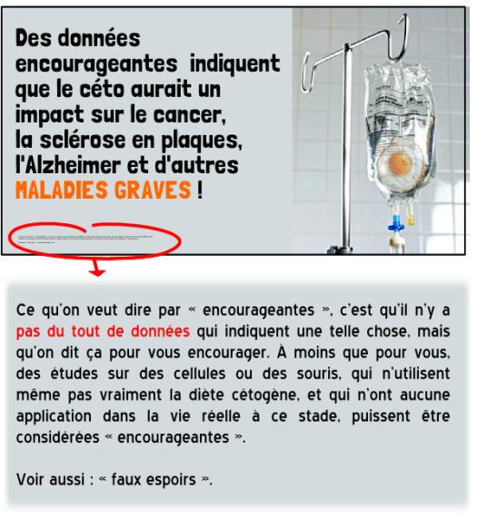 diète cétogène cancer sclérose en plaques alzheimer