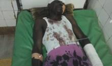 Axe Man-Facobly/La moto d'un journaliste violemment percutée par un chauffard : sa mâchoire et son bras fracturés