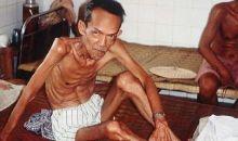[Lutte contre la tuberculose] Les nations Unies réaffirment leurs engagements pour éradiquer l'épidémie d'ici 2030