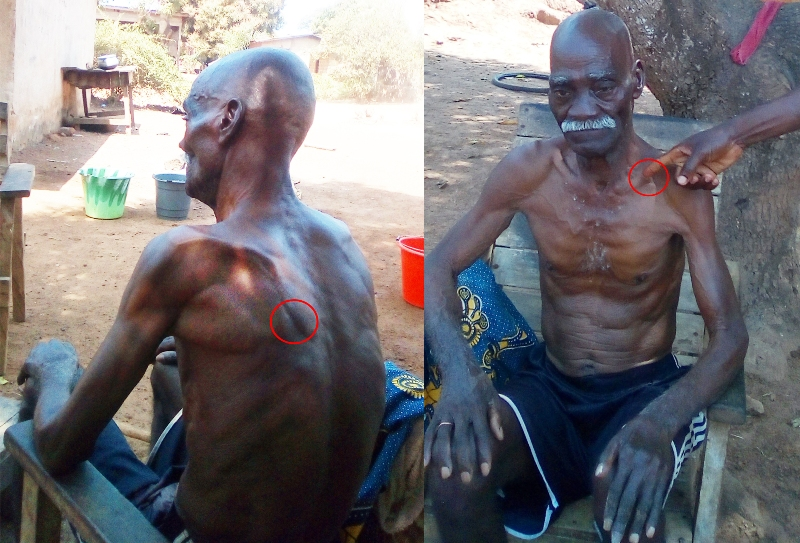 Gabriel Yoro Ouhomplégnon, 65 ans, l'une des victimes de la crise du 28 décembre 2010, lutte contre la paralysie à Bagohouo