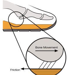 friction blister diagram data diagram schematictape use to prevent blisters does it really do what we [ 1000 x 1269 Pixel ]