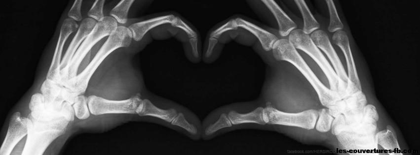 Radiographie coeur-photo de couverture journal facebook