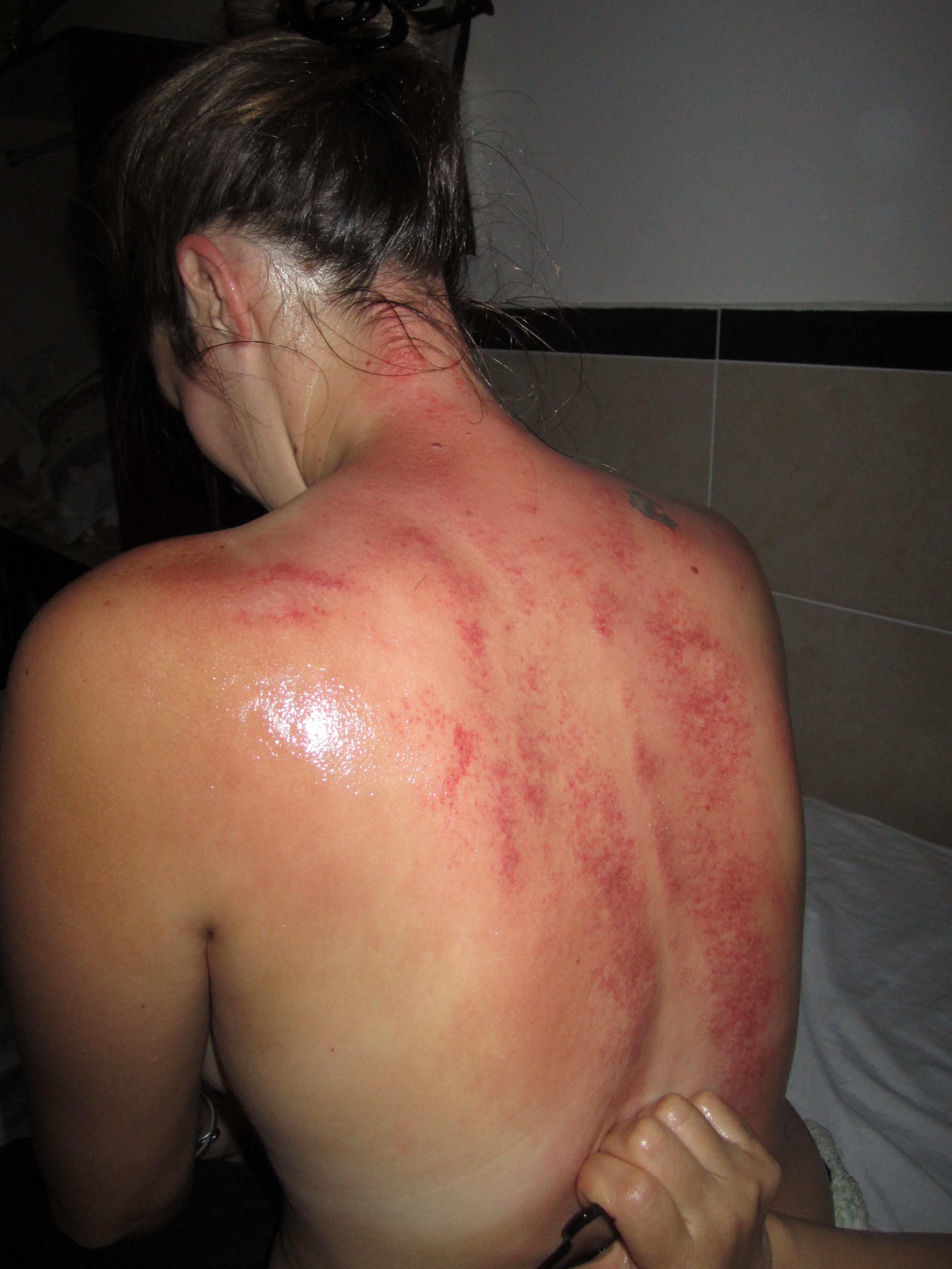 Gua Sha et les massages par les aveugles  lesaventuresde4legs