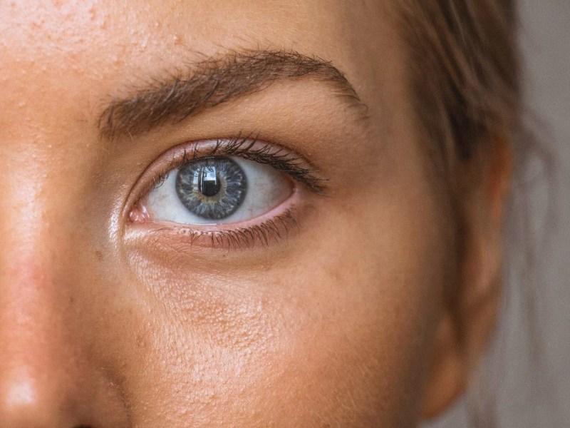 5 conseils pour avoir une belle peau sans imperfections