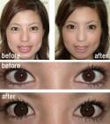 Opération des yeux.