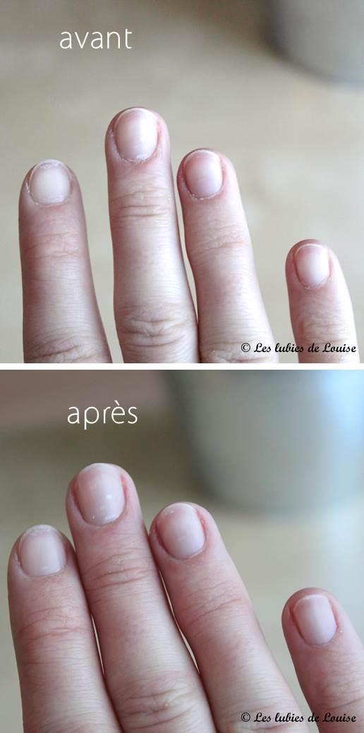 Huile De Ricin Ongles : huile, ricin, ongles, Petite, Huile, Magique, Ongles, Ecrinal, Lubies, Louise