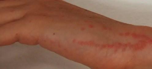 piqûres des punaises de lit dans une main