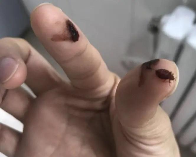 punaise de lit entre les doigts