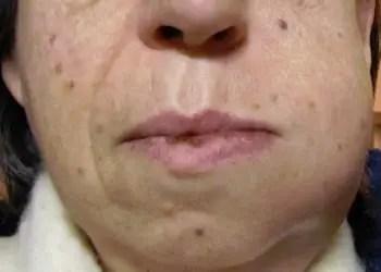 visage enflée suite à une piqûre de guêpe infectée