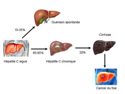 Remède naturel No 04: Hépatite B et C: remède naturel