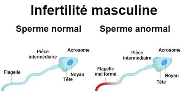 Graines de Nigelle et fertilité masculine