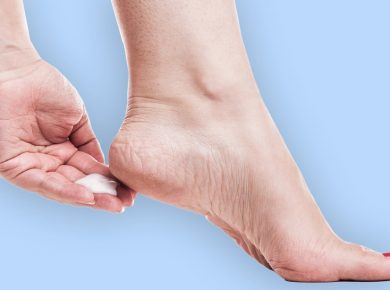 5 tips for treating foot cracks