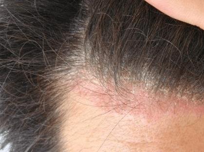 頭髮保養步驟