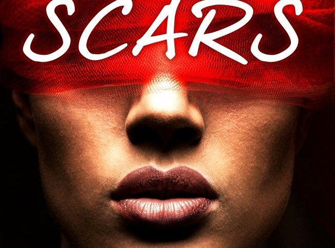 «Scars» de Marie H.J