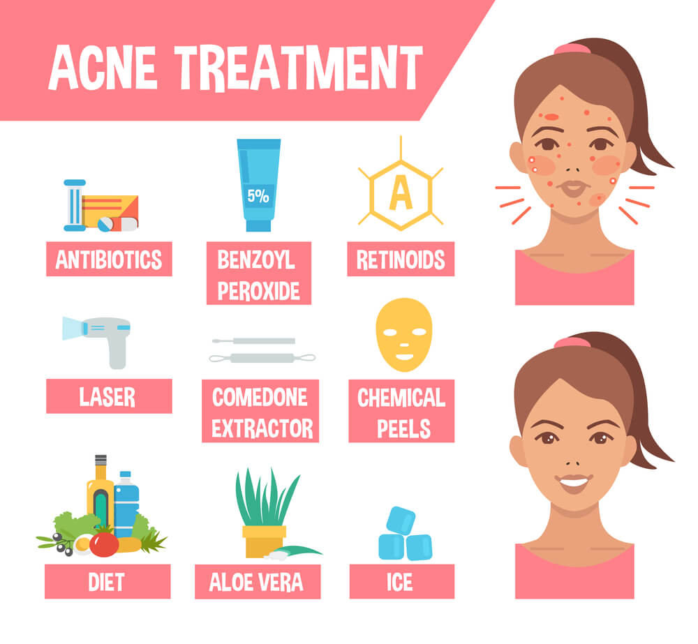 best ingredients for acne prone skin