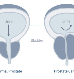 cancer in the prostate gland diagram  [ 3840 x 2228 Pixel ]