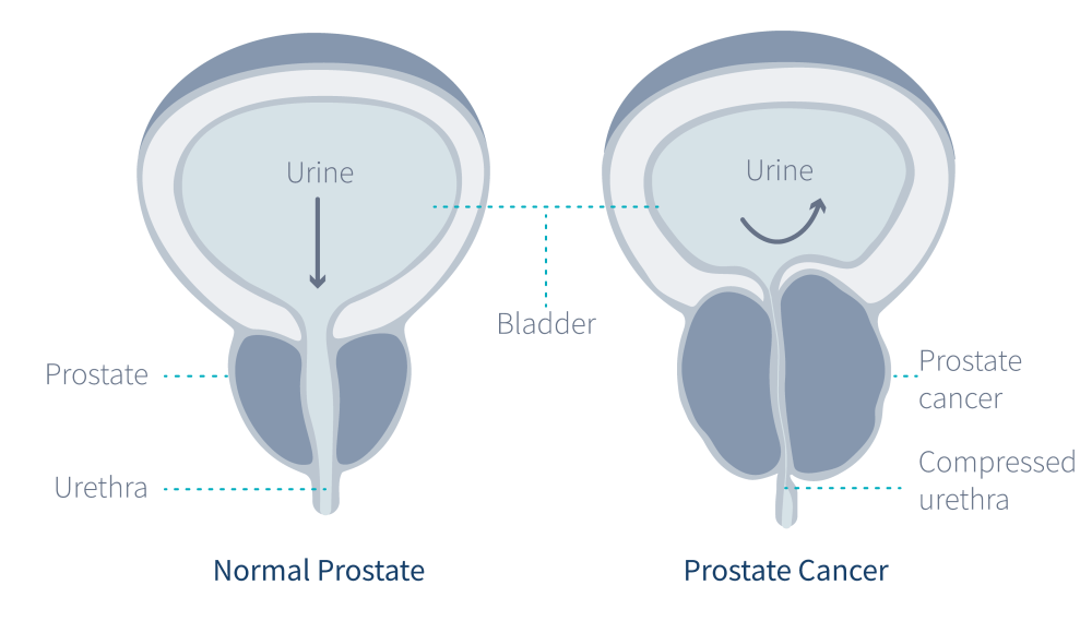 medium resolution of cancer in the prostate gland diagram
