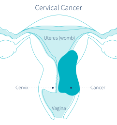 cervical cancer could be causing brown discharge [ 3841 x 2161 Pixel ]